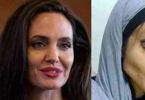 Iraniana faz 40 cirurgias para ficar parecida com Angelina Jolie