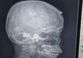 Adolescente baleado por irmão com arma do pai na PB continua em estado grave