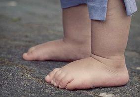 Criança de dois anos morre após ingerir pilha do controle da TV