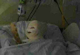 Bebê sofre queimaduras após aparelho explodir durante cirurgia