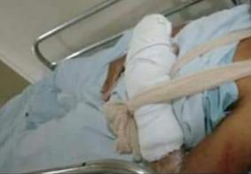 Polícia Civil identifica agressoras envolvidas em sessão de tortura no interior da Paraíba