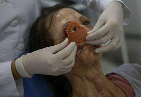 Ciência, amor e tecnologia: instituto faz campanha para realizar reabilitação facial gratuita