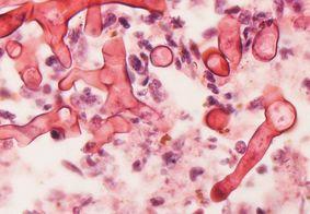 Caso de fungo negro em paciente que teve covid-19 é registrado em Pernambuco
