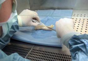 Primeiro transplante de traqueia impressa em 3D do mundo será realizado em breve