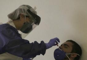 Testes para diagnóstico de covid-19 não atestam proteção vacinal